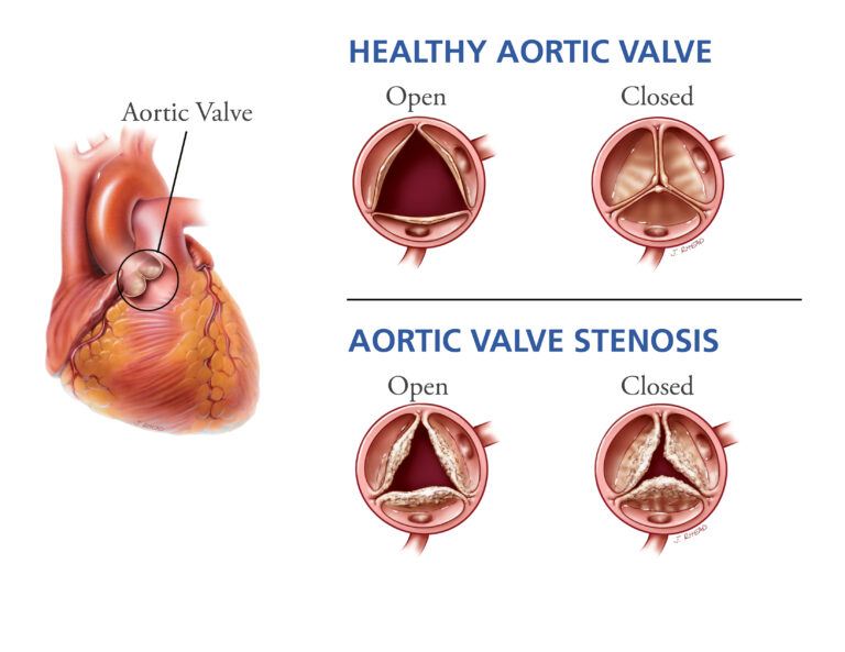 what is tavr and when is it done